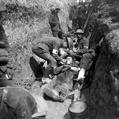 'World War One: tending of wounded in trenches'  https://wellcomecollection.org/works/dup6t9g4  Credit: Wellcome Collection. CC BY